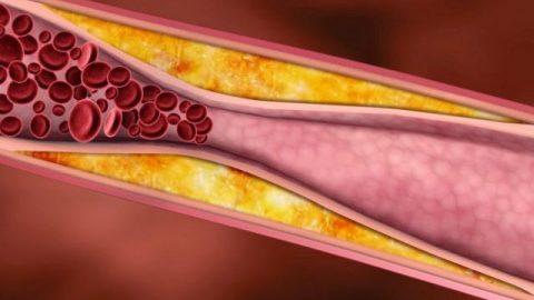 Bệnh máu nhiễm mỡ nguy hiểm như thế nào?