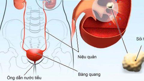 Đi tiểu ra máu không đau là bệnh gì?