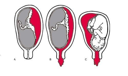 Nghiệm pháp bong rau, đỡ rau, kiểm tra bánh rau thường được nói đến trong các cuộc sinh đẻ.