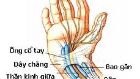 Nguyên nhân gây hội chứng ống cổ tay