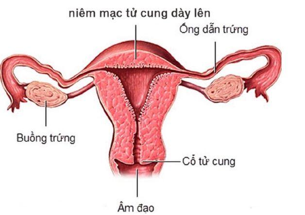 Niêm nạc tử cung là khái niệm dùng để chỉ lớp mỏng bao bọc toàn bộ bề mặt ở phía bên trong tử cung.