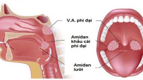 Nạo VA bằng công nghệ plasma rút ngắn thời gian hồi phục