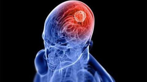 Ung thư dạ dày di căn não có chữa được không?