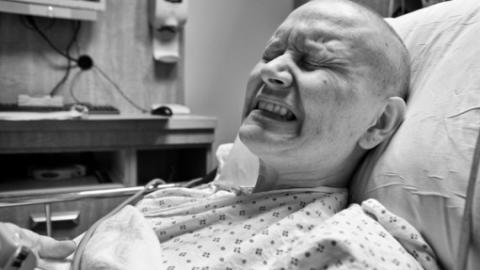 Ung thư dạ dày di căn xương không còn giới hạn
