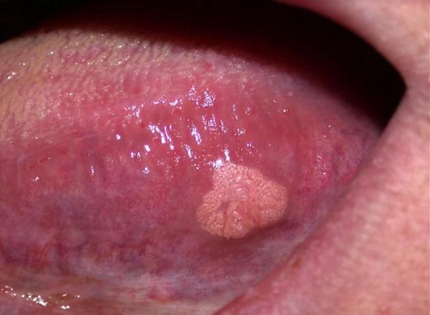 Hình ảnh ung thư lưỡi giai đoạn đầu có kích thước lớn nhất khoảng 2 cm, chưa xâm lấn đến bất kì hạch bạch huyết hay đến các cơ quan ở xa nào.