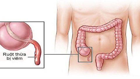 Viêm đường ruột nên ăn gì? hạn chế những triệu chứng