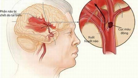 Xuất huyết não ai dễ mắc? nguy hiểm thường tiến triển bất ngờ
