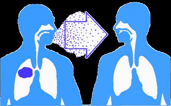 Bệnh lao phổi có lây không? Câu trả lời là lây nhiễm qua đường hô hấp