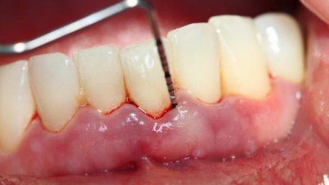 Bệnh nướu răng và cách chăm sóc răng miệng