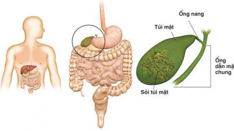 Bệnh sỏi mật và những điều cần biết khi điều trị bệnh sỏi mật