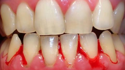 Chảy máu chân răng cảnh báo bệnh gì?
