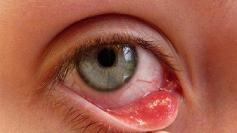 Đau mắt hột – nguyên nhân và cách phòng ngừa