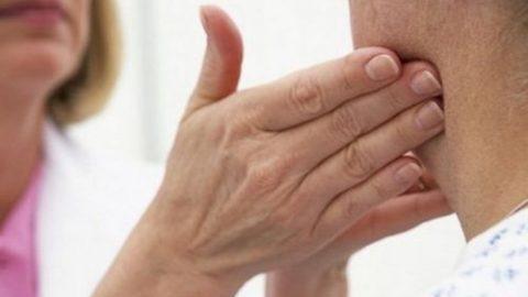 Nổi hạch ở cổ có phải ung thư tuyến giáp không?