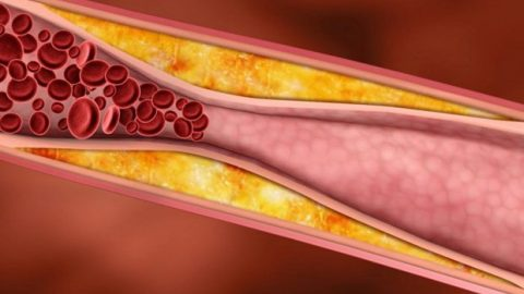 Nguyên nhân gây xơ vữa động mạch và cách điều trị
