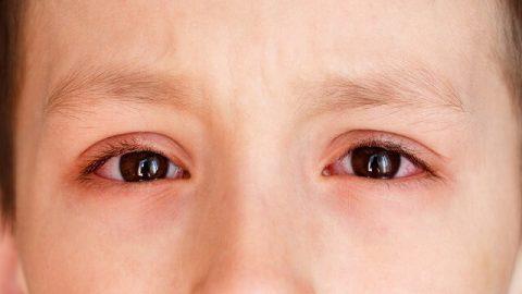 Những điều cần biết về bệnh đau mắt đỏ