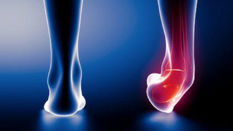 Trật khớp cổ chân phải làm sao? Điều trị như thế nào?