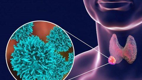 Ung thư tuyến giáp có chữa khỏi không?
