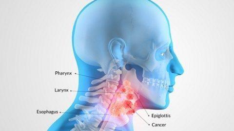Ung thư vòm họng có thể sống được bao lâu