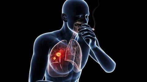 Vì sao hút thuốc lá gây ung thư phổi?