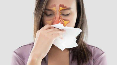 Góc giải đáp: Viêm mũi phù nề điều trị như thế nào?