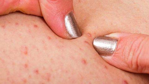 Viêm nang lông có chữa được không?