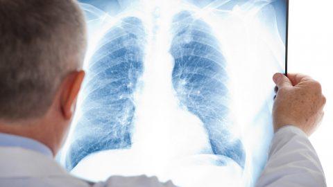 Viêm phổi kẽ nguy hiểm không? giải đáp cụ thể