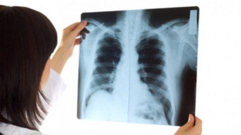 Chụp ct có cản quang là gì? chẩn đoán phát hiện các bệnh