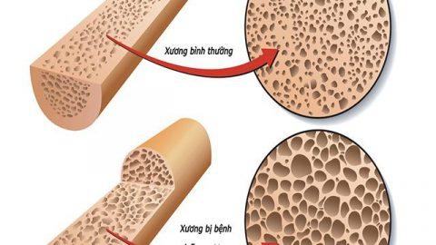 Nguyên nhân và triệu chứng bệnh loãng xương