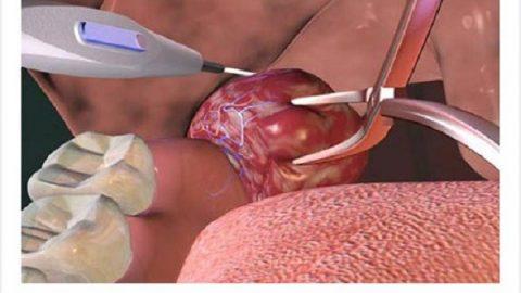 Phẫu thuật cắt amidan bằng plasma
