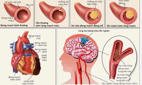 Điều trị xuất huyết não bằng cách nào và hiệu quả đến đâu luôn là vấn đề nhiều người muốn tìm hiểu.