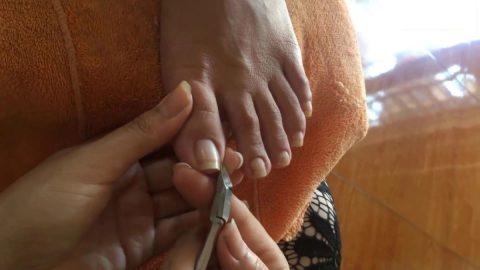 Lấy khóe móng chân bị sưng có đáng sợ?