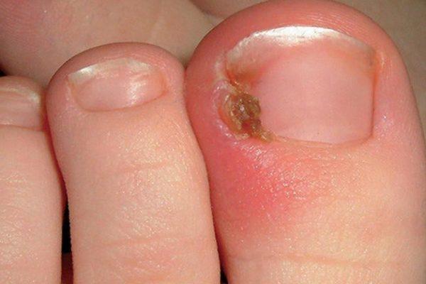 Lấy khóe móng chân bị chọc thịt phải làm gì?
