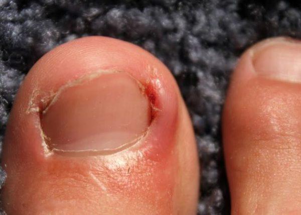 Lấy khóe móng chân có thể gây nên nhiều hậu quả khó lường