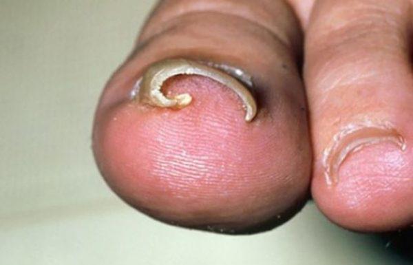 Lấy khóe móng chân nhiều có tác hại gì?