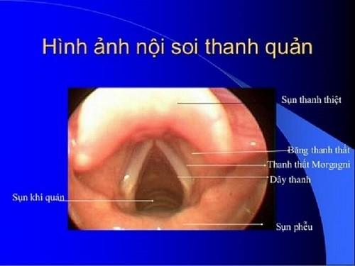Địa chi nội soi thanh quản bằng ống mềm ở Hà Nội Không Đau