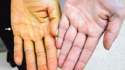 Từ A – Z những điều cần biết về bệnh viêm gan B