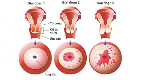 Tiêm ngừa ung thư cổ tử cung mấy mũi?