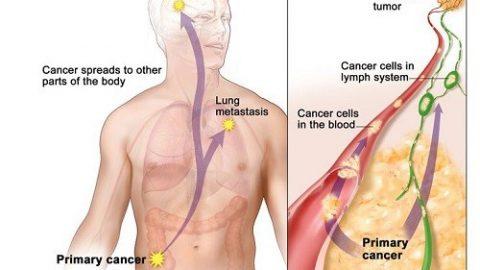 Ung thư di căn sống được bao lâu?