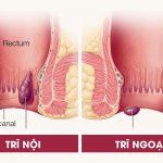 Phương pháp thắt mạch khâu treo búi trĩ có hiệu quả?