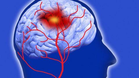 Cách điều trị xuất huyết não bằng cách nào và hiệu quả