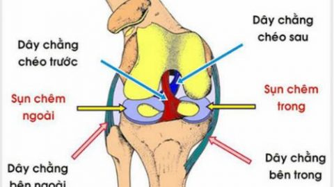 Đứt dây chằng chéo trước rách sụn chêm chữa thế nào?