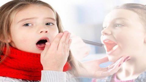 Bài thuốc chữa viêm amidan hốc mủ được dân gian áp dụng