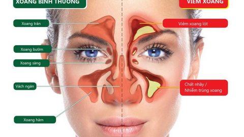 Cách chữa viêm xoang mũi hiệu quả bạn nhất định
