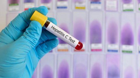 Anti HCV nonreactive là gì? Ý nghĩa của chỉ số