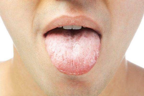 Lưỡi trắng biểu hiện một số bệnh lý mắc phải như tiểu đường, bệnh giang mai, bệnh nấm miệng, bệnh bạch sản, bệnh liken phẳng miệng hay do vệ sinh vùng miệng, lưỡi không sạch sẽ.