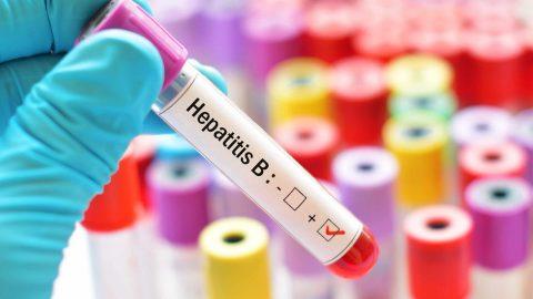 Nồng độ virus viêm gan B trong huyết tương