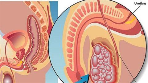 Biểu hiện bệnh ung thư tinh hoàn và cách điều trị tốt nhất