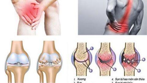 Phòng khám cơ xương khớp Thu Cúc có tốt không?