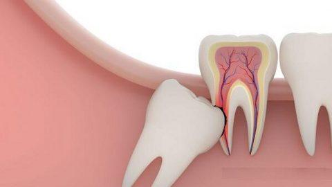 Nhổ răng khôn có bị gì không? Tại sao nên nhổ răng khôn