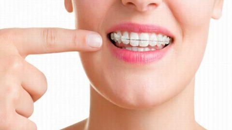Những lưu ý quan trọng khi Niềng răng sứ